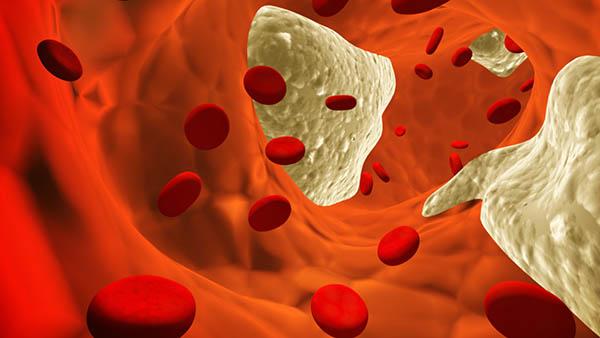 colesterol arteria