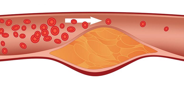 ateroma gordura artéria