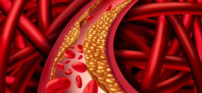 angina arteria