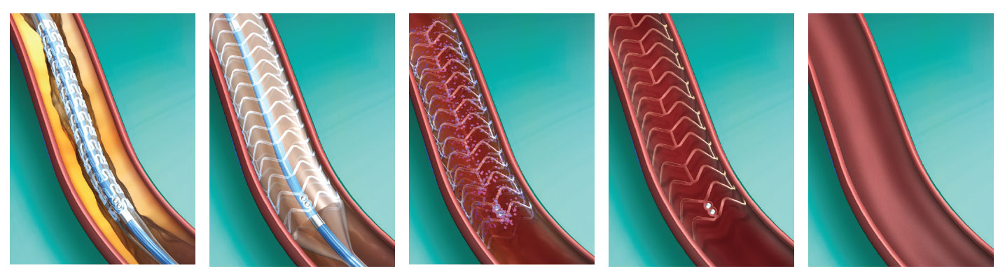 stent absorvível