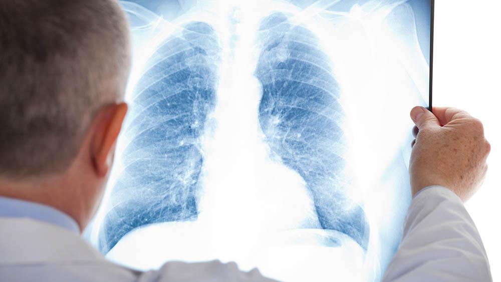 pulmao doencas respiratorias